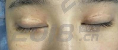失败的双眼皮遇见超声波双眼皮终于得到拯救