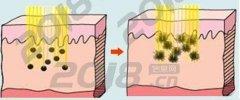 激光诊治黄褐斑如何
